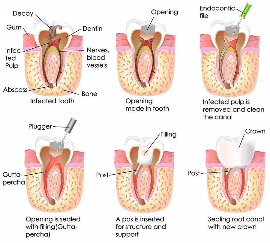 Endodontist in Barsha, Dubai
