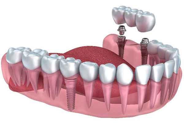 Prosthodontist in Barsha -Dubai