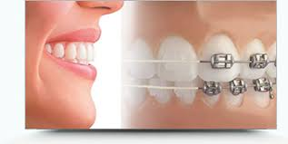 Tips for Making Your Smile More Attractive After Orthodontic Treatment