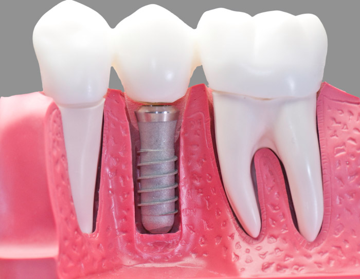 Prosthodontist - specialised in teeth replacement and cosmetic dentistry