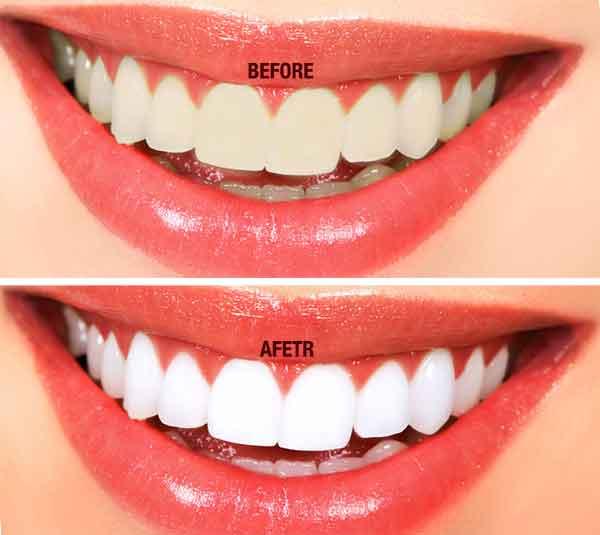 Tooth Whitening in Dubai