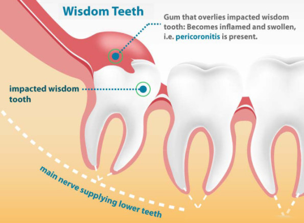 Wisdom tooth extraction in Al Barsha, Dubai