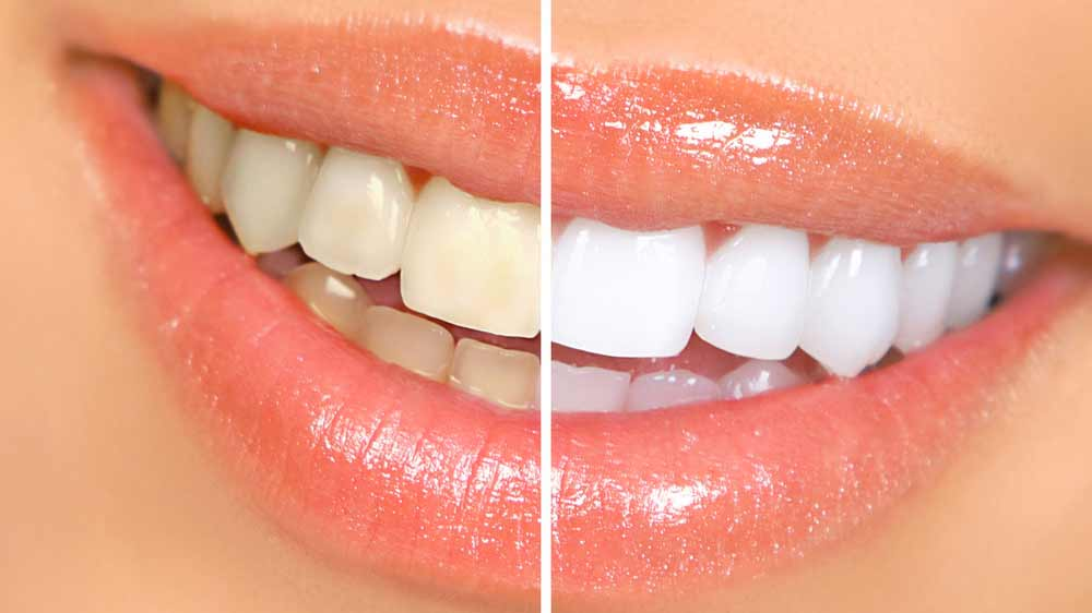 tips to whiten teeth