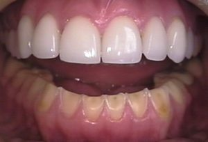 Oral Cancer Treatment