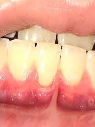 periodontitis disease or gum disease