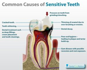 sensitive teeth treatment-causes