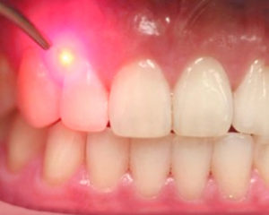sensitive teeth treatment-symptoms