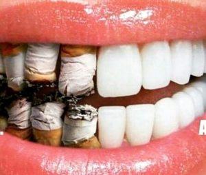 bleeding gums treatments