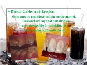 Harmful Effects Of Soft Drinks On Teeth