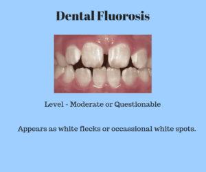 moderate dental fluorosis