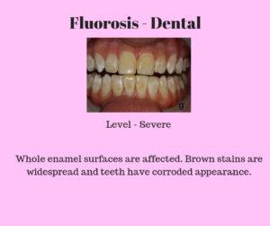 severe dental flurosis