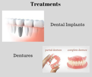 treatment for edentulism or tooth loss