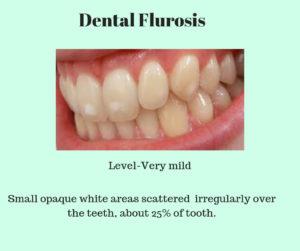 very mild dental fluorosis