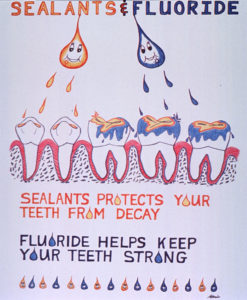 dental sealant to protect your teeth