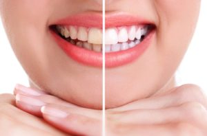 Precautions for teeth whitening