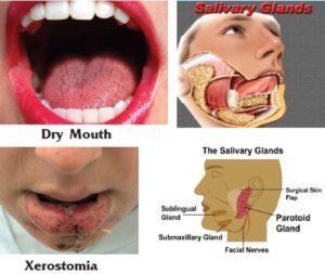 dry-mouth-saliva