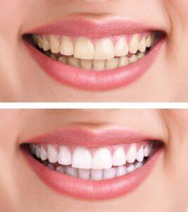 impure-teeth