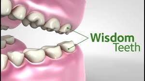why-should-i-remove-wisdom-teeth