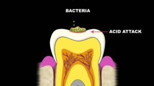 Bacteria-and-Acid-Attack-on-teeth