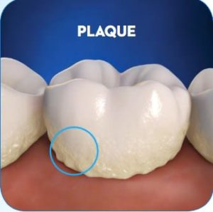 Teeth_plaque