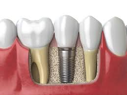 Aftercare-for-your-Dental-Implant-Surgery
