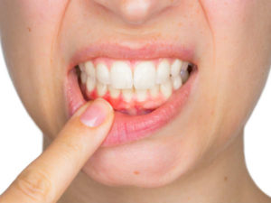 lower swelling gums