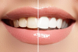 Removal of yellow color on your teeth